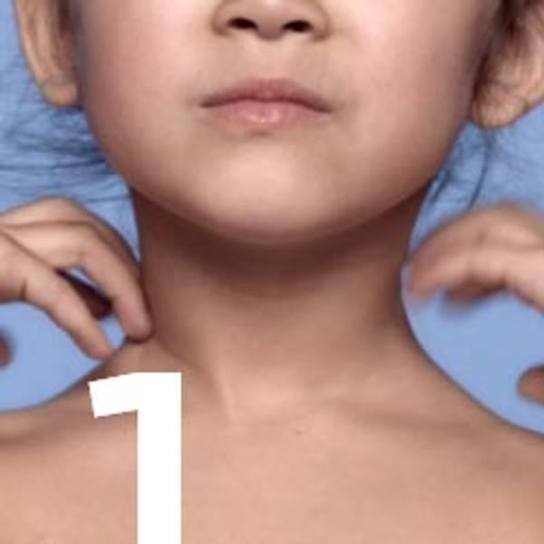 Picor en la piel de los niños